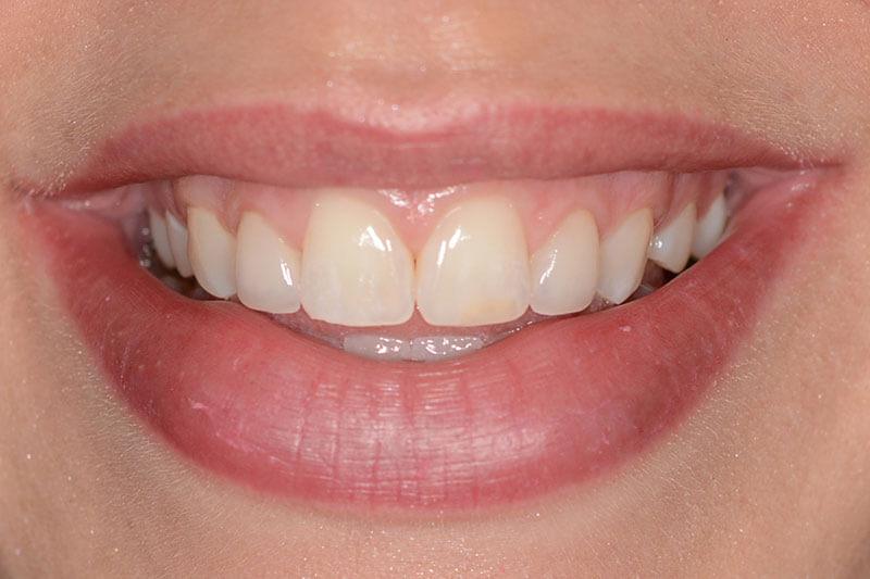 Miranda Dental Health - After Dental Treatment