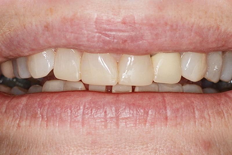 Miranda Dental Health - Teeth Problem Treated