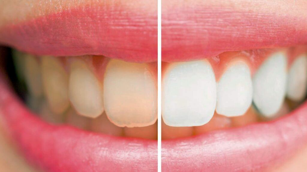 Miranda Dental Health -Teeth-Whitening